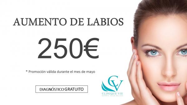 Relleno de labios en TodoEstetica.com