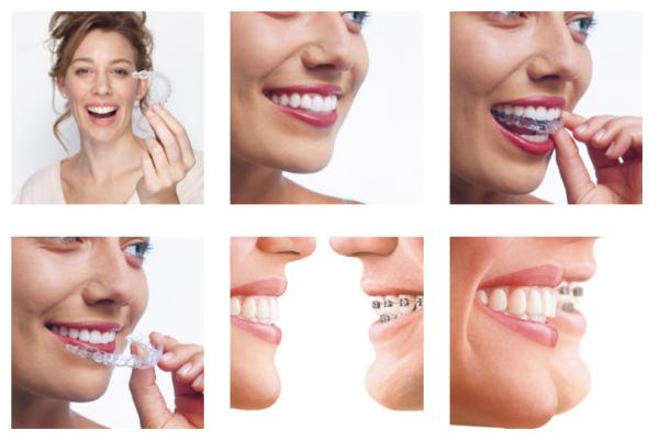 Ortodoncia Invisalign desde 166,52€/mes en TodoEstetica.com