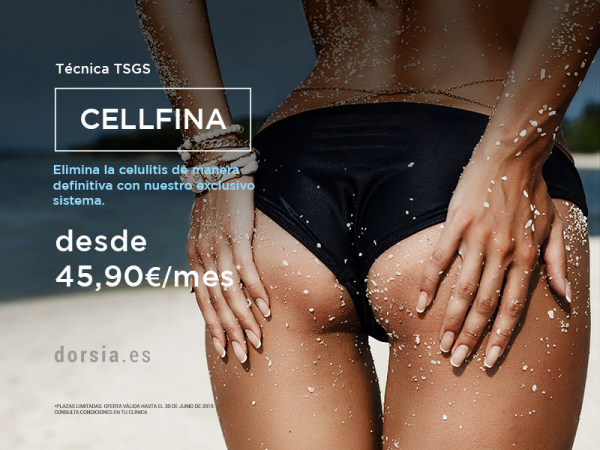 Cellfina desde 45,90€ al mes