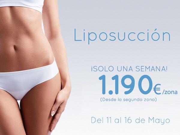 Liposucción 1.190€/zona en TodoEstetica.com