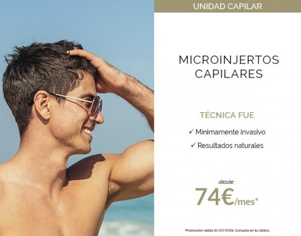 Microinjertos Capilares en TodoEstetica.com