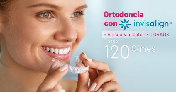 Rebajas Junio - Ortodoncia Invisalign