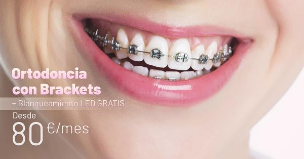 Rebajas Junio - Ortodoncia Brackets Metal