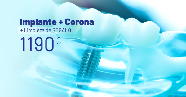 Rebajas Junio - Implante Dental + Corona de  Porcelana