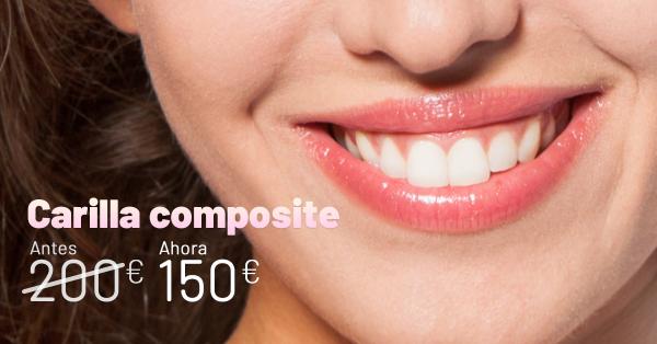 Rebajas Junio - Carillas Dentales