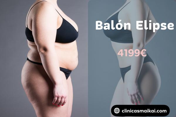 BALÓN ELIPSE 4199€