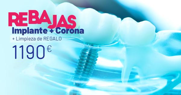 Rebajas de verano - Implante + Corona en TodoEstetica.com