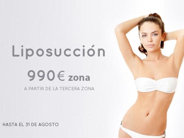 Liposucción 990€ - Sólo las 10 primeras personas en TodoEstetica.com