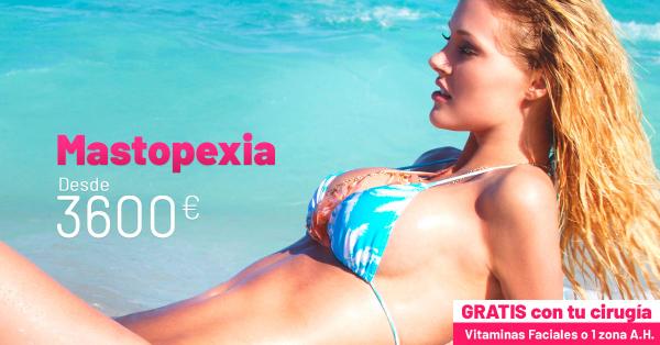 Mastopexia  en TodoEstetica.com