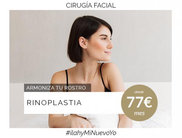 Rinoplastia en TodoEstetica.com