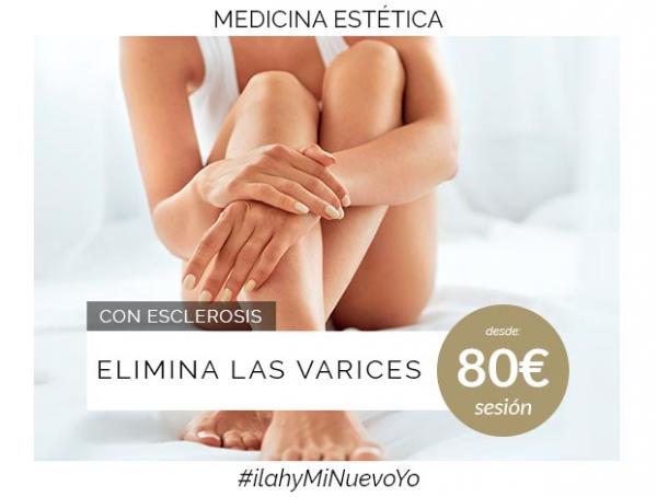 Elimina las varices en TodoEstetica.com
