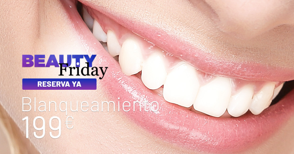 BEAUTY FRIDAY: BLANQUEAMIENTO DENTAL