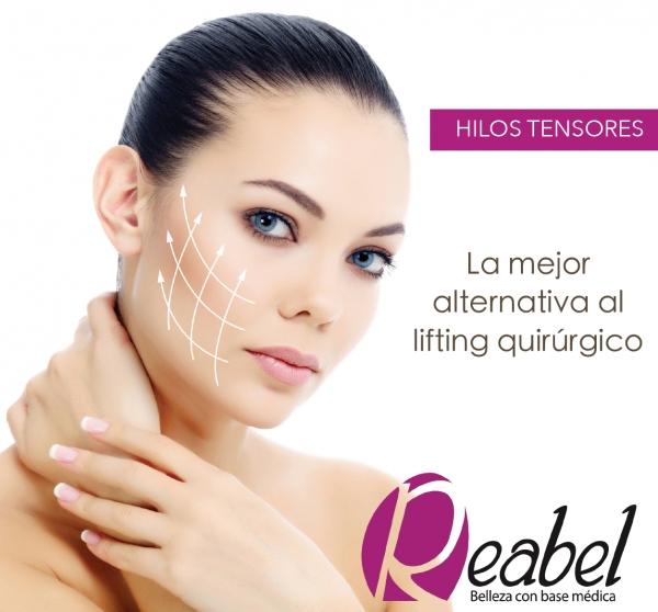 Promoción Hilos Tensores ( lifting no quirúrgico) en TodoEstetica.com