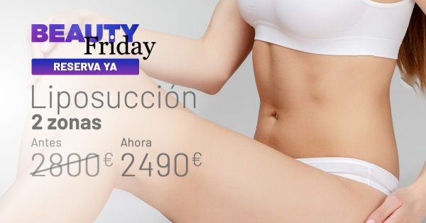 BEAUTY FRIDAY: LIPOSUCCIÓN 2 ZONAS
