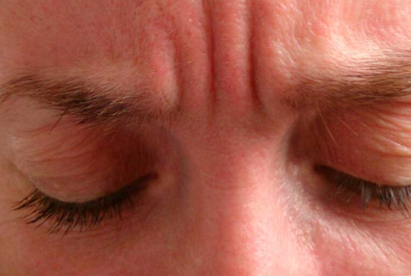 Eliminación de arrugas con BOTOX