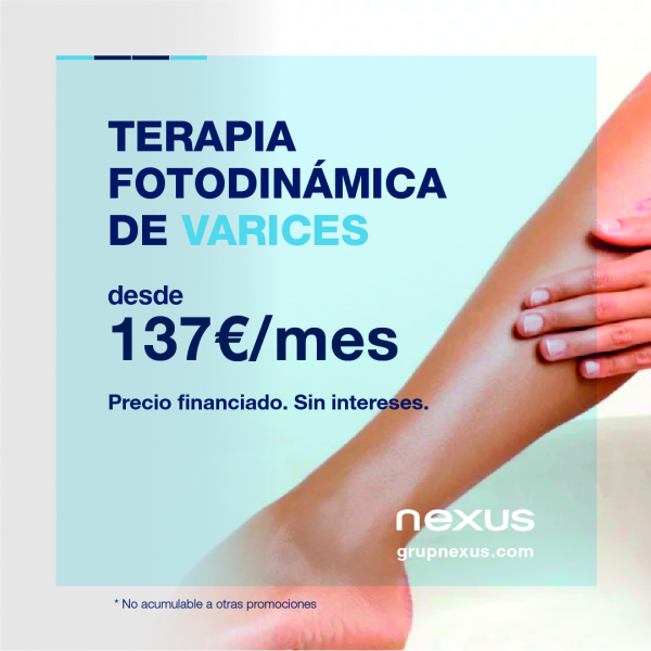 Por 137€/mes elimina las dolorosas y antiestéticas varices