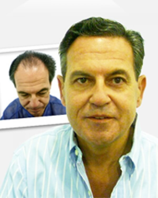 Injerto Capilar: desde 3.000 €