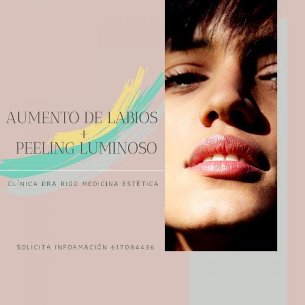 AUMENTO DE LABIOS + PEELING LUMINOSO