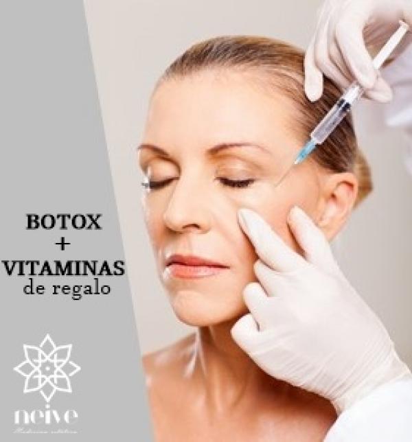 Botox frente,entrecejo y patas de gallo