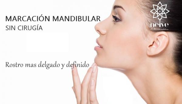 MARCACION MANDIBULAR con ácido hialurónico en TodoEstetica.com
