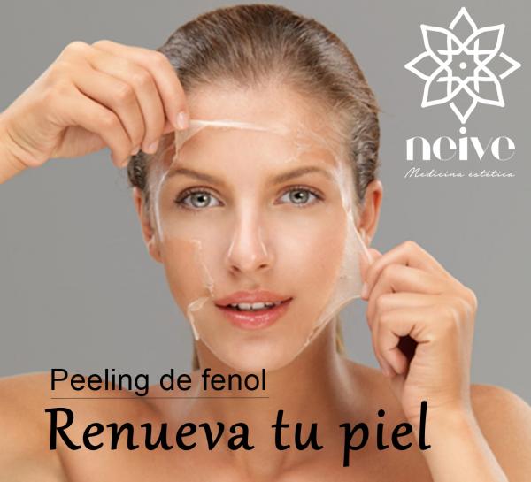 Peeling de fenol en TodoEstetica.com