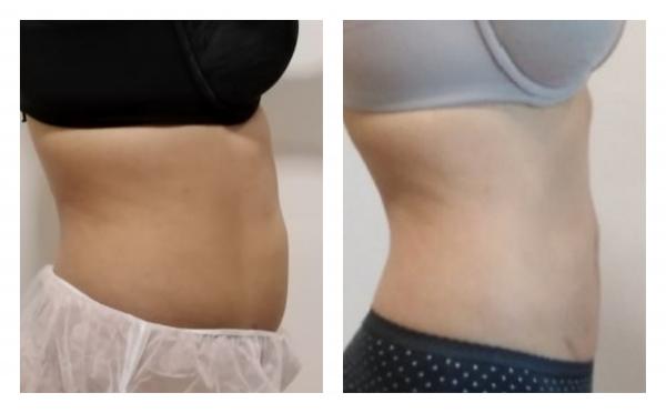 HIDROSLIM para reducción de grasa localizada en TodoEstetica.com