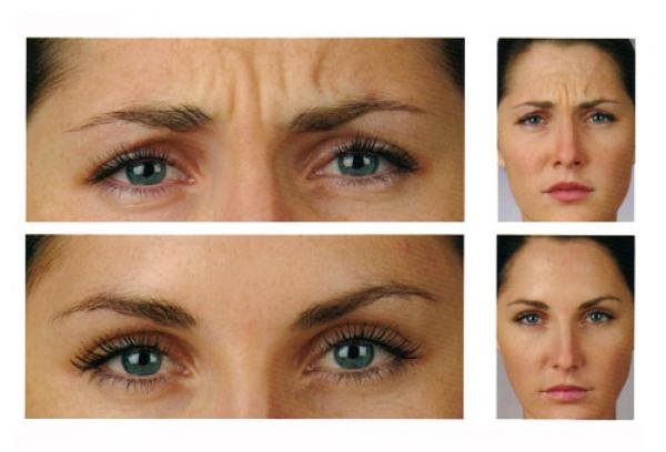 Botox en promoción 260€ en TodoEstetica.com