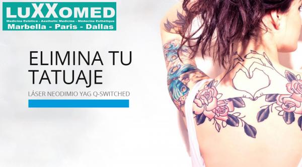 Eliminación de tatuajes en TodoEstetica.com