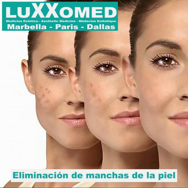 Manchas de la piel  en TodoEstetica.com