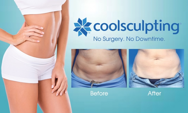 Criolipolisis - Coolsculting