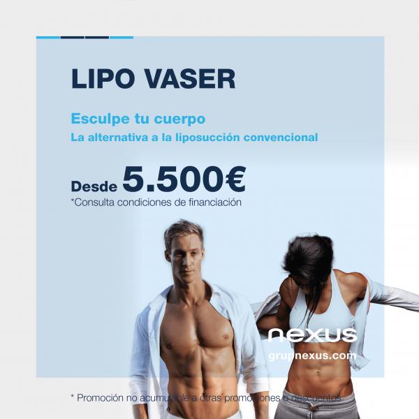 Lipo Vaser, la nueva revolución de la liposucción