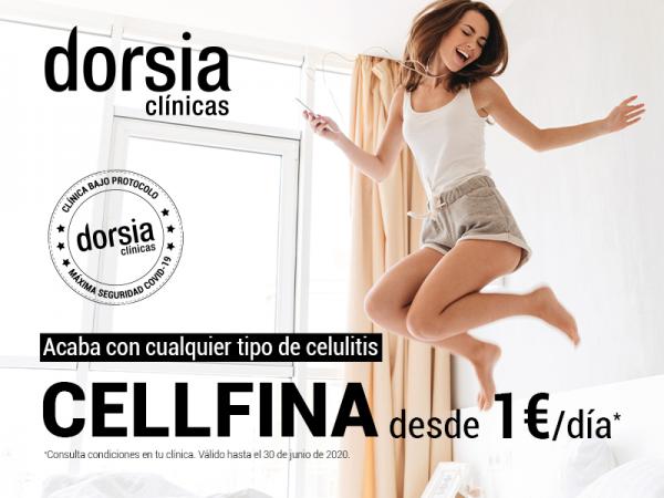 ELIMINA LA CELULITIS DESDE 1€ AL DÍA