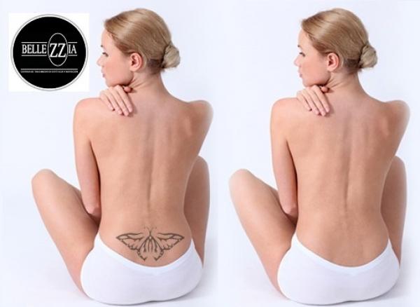 Eliminación de tatuajes y manchas - Láser ND-YAG Q-Switched