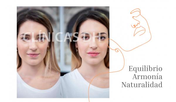¡Aumento de Labios con resultados totalmente naturales!