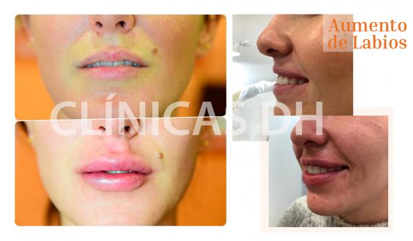 ¡Aumento de Labios con resultados totalmente naturales! en TodoEstetica.com