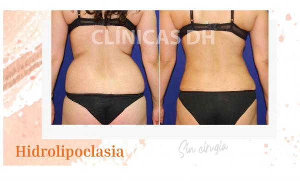 ¿Quieres eliminar la grasa localizada? Conoce más sobre la Hidrolipoclasia
