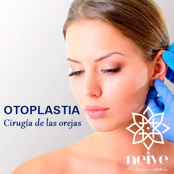 OTOPLASTIA en TodoEstetica.com
