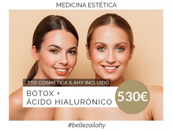 Botox + Ácido Hialurónico