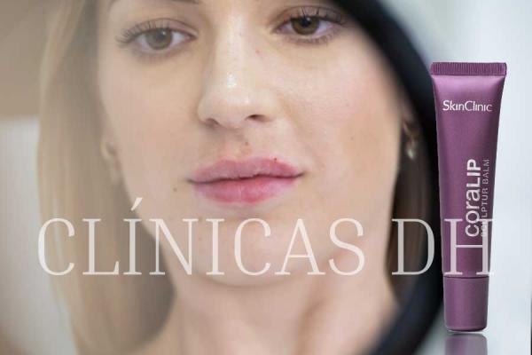 PROMOCIÓN: AUMENTO O PERFILADO DE LABIOS CON ÁCIDO HIALURÓNICO + TRATAMIENTO DOMICILIARIO en TodoEstetica.com