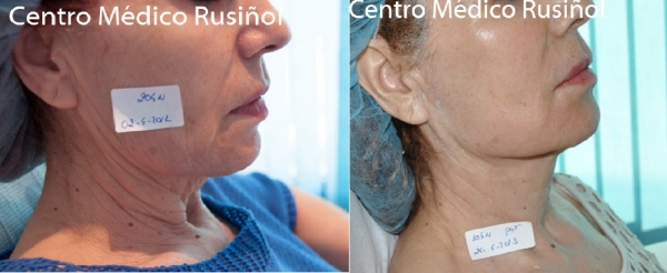 Pack Lifting facial sin cirugía