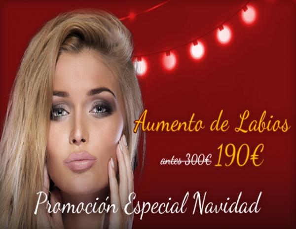 Navidad: Relleno de labios 190€/zona  en TodoEstetica.com