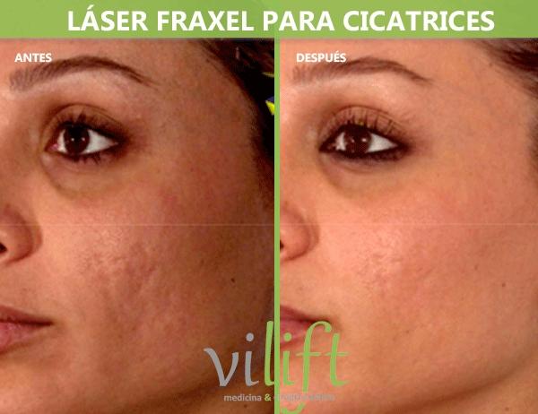 Láser Fraxel para cicatrices desde 200€/sesion y 30% dto. Bono 3 sesiones