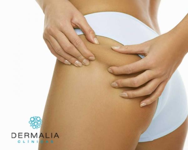 Prepara tu cuerpo para lucirlo. Carboxiterapia y Mesoterapia Sólo 55€/sesión en TodoEstetica.com