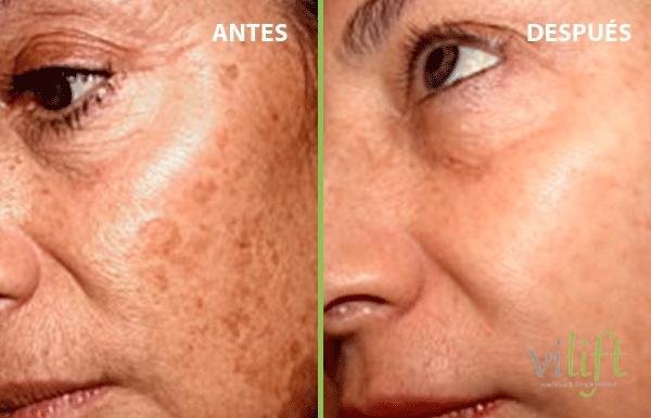 Eliminar manchas en la piel desde 200€/sesión