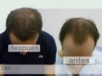 Súper megasesion de injerto capilar combinando técnica FUSS (tira) y FUE en TodoEstetica.com