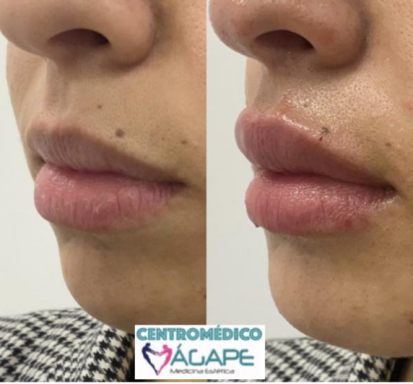 Ácido hialurónico Juvederm para labios más vitaminas faciales