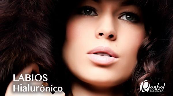 ¡¡Aumento de labios!! Madrid