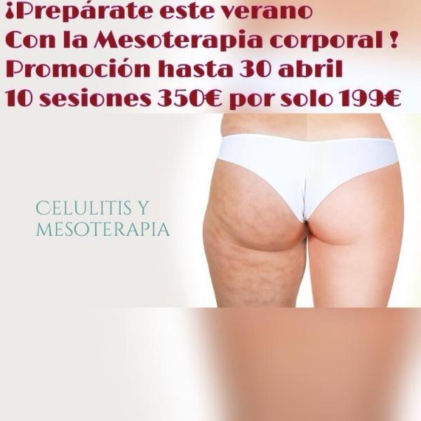 Prepárate este verano con la mesoterapia corporal elimina la celulitis  en TodoEstetica.com