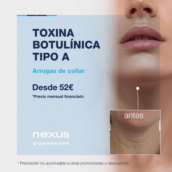 Elimina las arrugas de collar desde 52€/mes