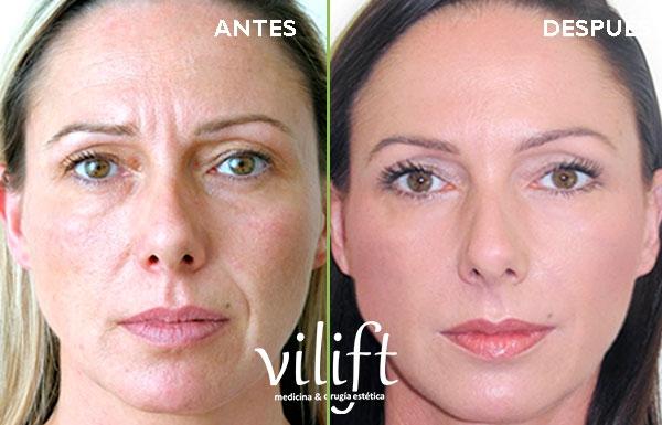 Rejuvenecimiento Facial completo Deluxe  en TodoEstetica.com